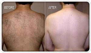 hair-removal-before-and-after1.jpg